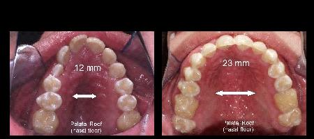 5 - تنفس دهانی در کودکان