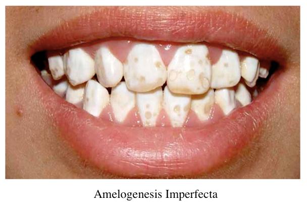 4 - نقص ميناي دندان (آملوژنزیس ایمپرفکتا)