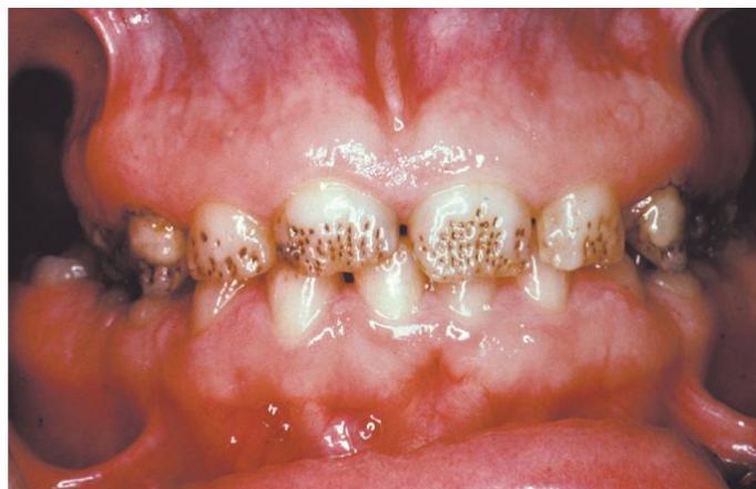 5 - نقص ميناي دندان (آملوژنزیس ایمپرفکتا)