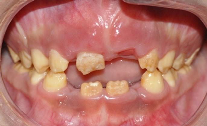 7 2 - نقص ميناي دندان (آملوژنزیس ایمپرفکتا)