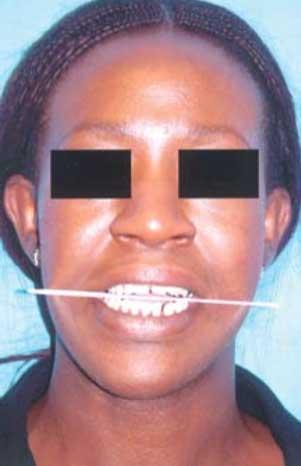 5 1 - انحراف فک پایین (آسیمتری مندیبل) در ارتودنسی