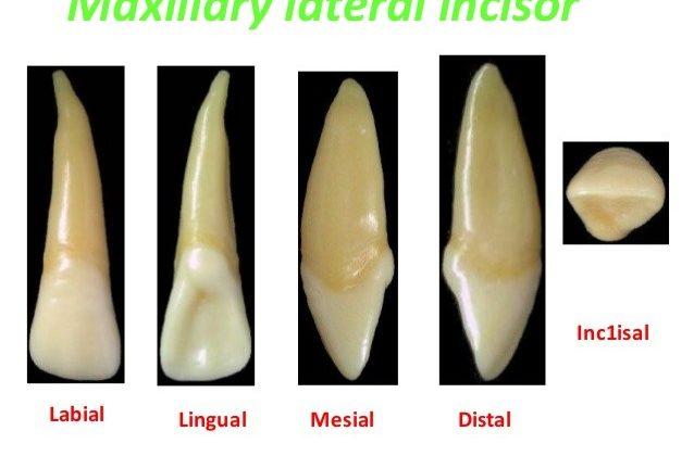 1 2 638x420 - ارتودنسی و پوسیدگی دندان