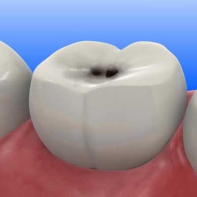 1 3 - ارتودنسی و پوسیدگی دندان