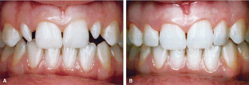 2 2 - دندان لترال میخی شکل و درمان آن