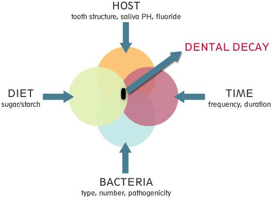 2 - ارتودنسی و پوسیدگی دندان