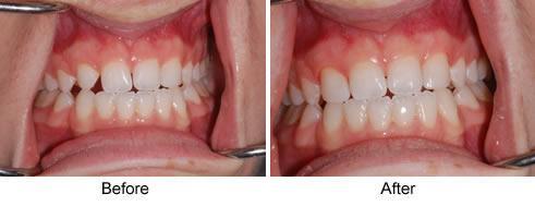 3 1 - دندان لترال میخی شکل و درمان آن