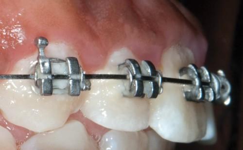 3 3 - ارتودنسی و پوسیدگی دندان