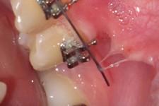 سلولهای بنیادین پالپ دندان