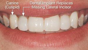 4 2 - دندان لترال میخی شکل و درمان آن