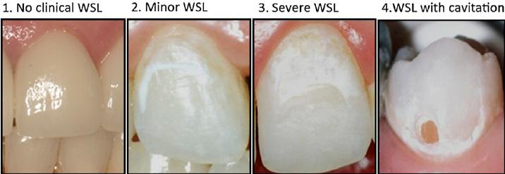 4 - ارتودنسی و پوسیدگی دندان