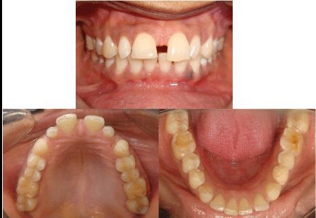 6 1 - دندان لترال میخی شکل و درمان آن