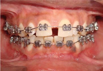 7 2 - دندان لترال میخی شکل و درمان آن
