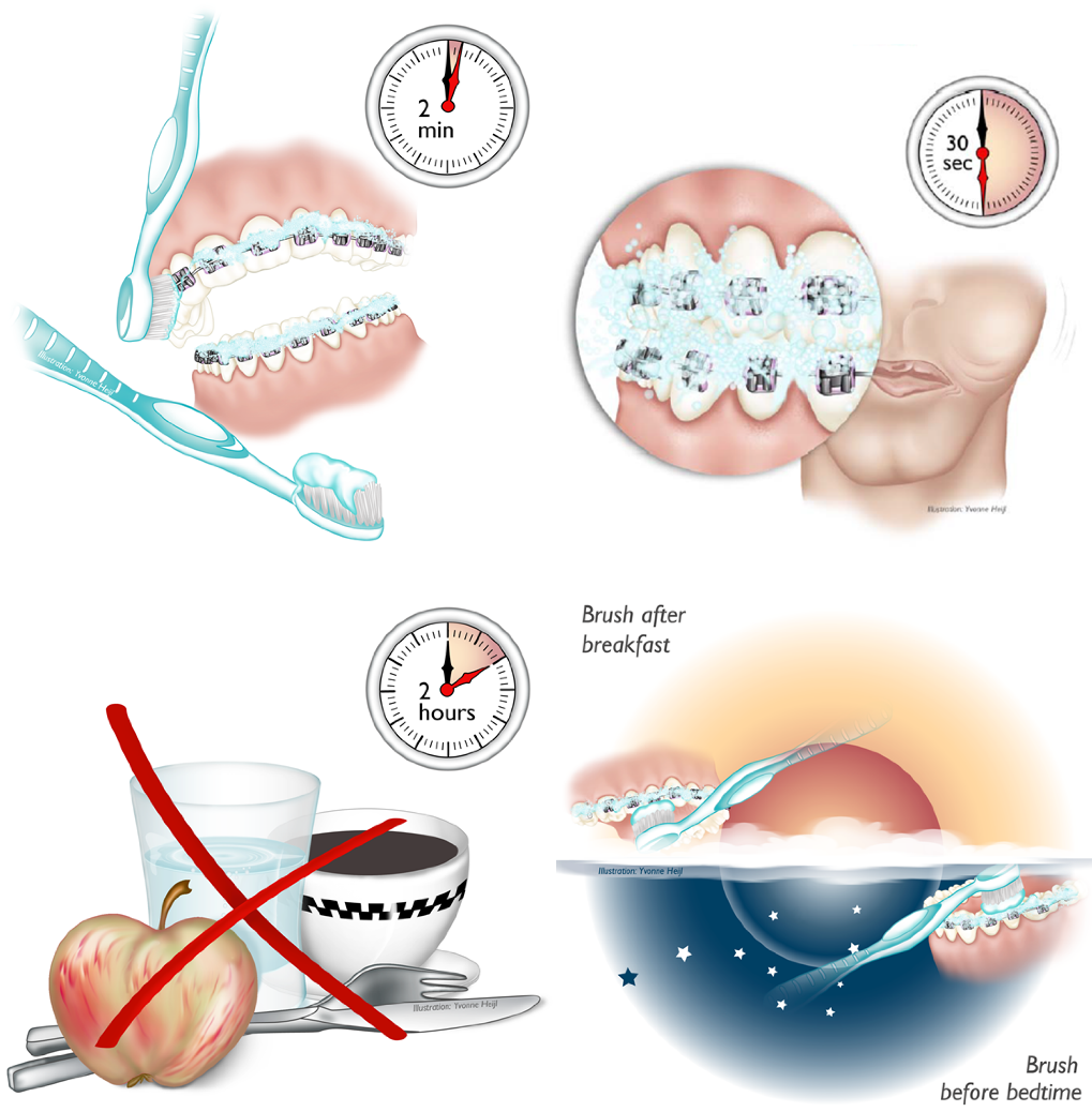 7 - ارتودنسی و پوسیدگی دندان
