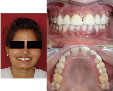 8 1 - دندان لترال میخی شکل و درمان آن