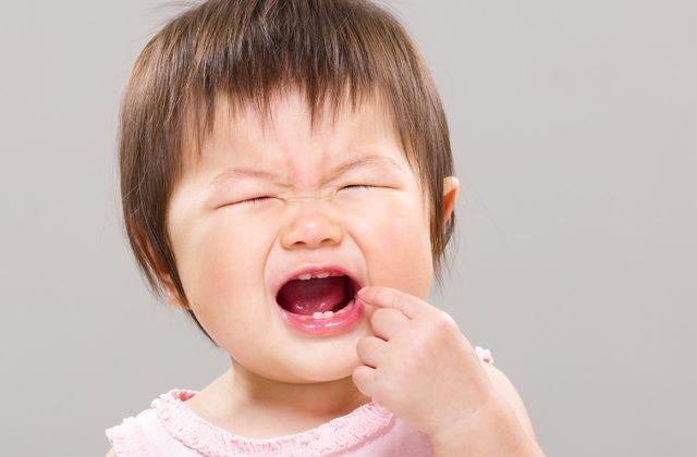8 3 - خونریزی لثه در کودکان