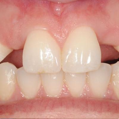 1 1 - فقدان مادرزادی دندان