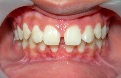 1 - فضای بین دندان های جلو