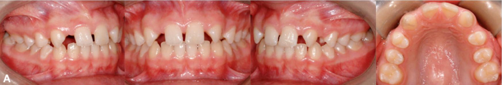 3 1 - فقدان مادرزادی دندان