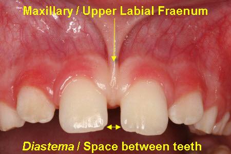 3 - فضای بین دندان های جلو