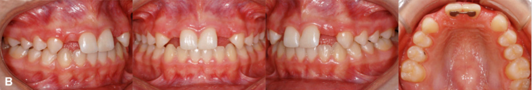 4 1 - فقدان مادرزادی دندان