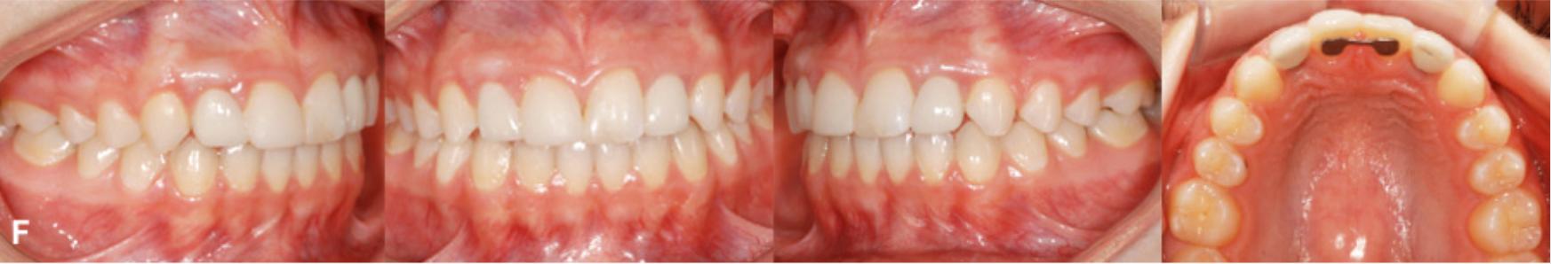 5 1 - فقدان مادرزادی دندان