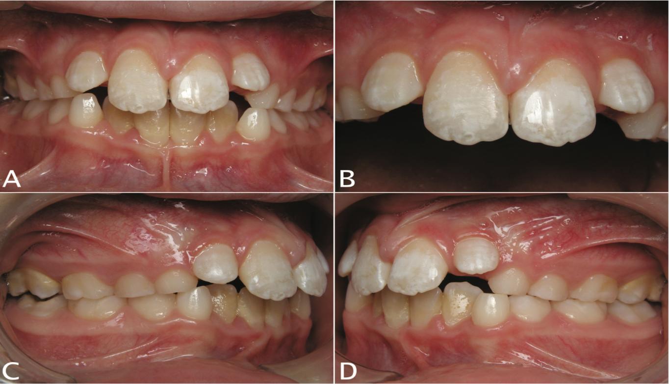 8 - فضای بین دندان های جلو