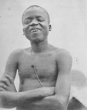 ریشه دندان تیز کردن در تاریخ