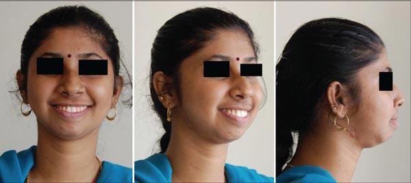 10 1 - درمان ارتودنسی و جراحی برای مشکلات فکی شدید