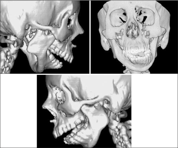 درمان ارتودنسی و جراحی برای مشکلات فکی شدید