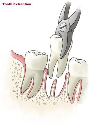 1 1 1 335x420 - کشیدن دندان در ارتودنسی