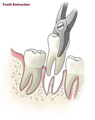 1 1 1 - کشیدن دندان در ارتودنسی