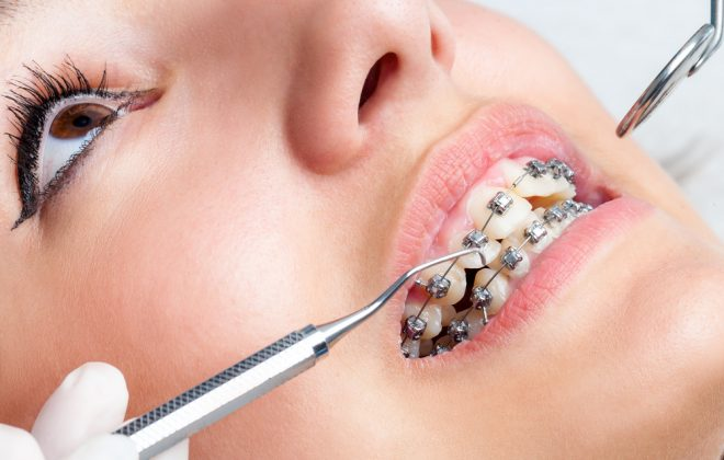 1 5 1 660x420 - کشیدن دندان عقل و ارتودنسی