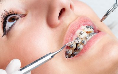 کشیدن دندان عقل و ارتودنسی