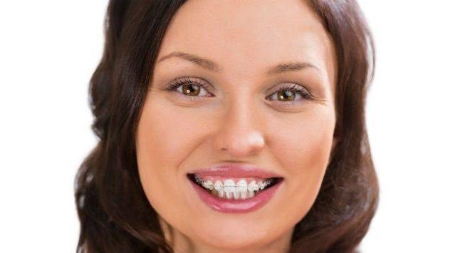 zzz 1 660x355 - ارتودنسی هم رنگ دندان