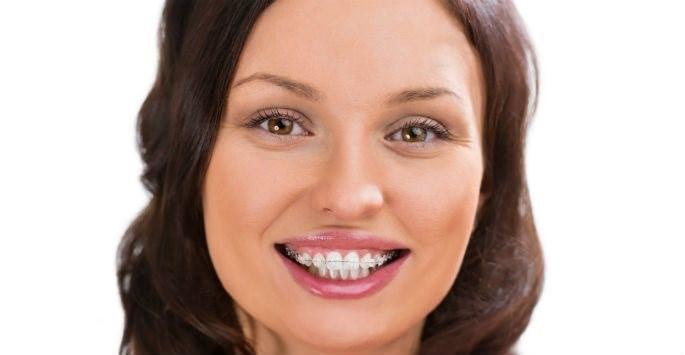 zzz 1 - ارتودنسی هم رنگ دندان