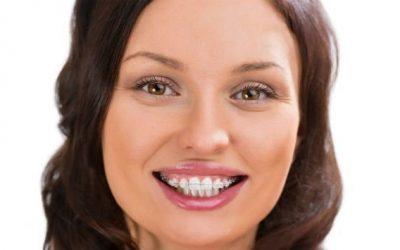 ارتودنسی هم رنگ دندان