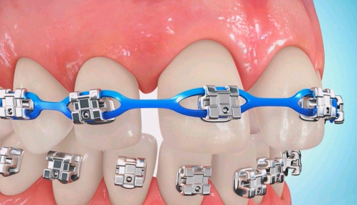 0 1 1 1178x675 - ارتودنسی برای بستن فاصله بین دندانها