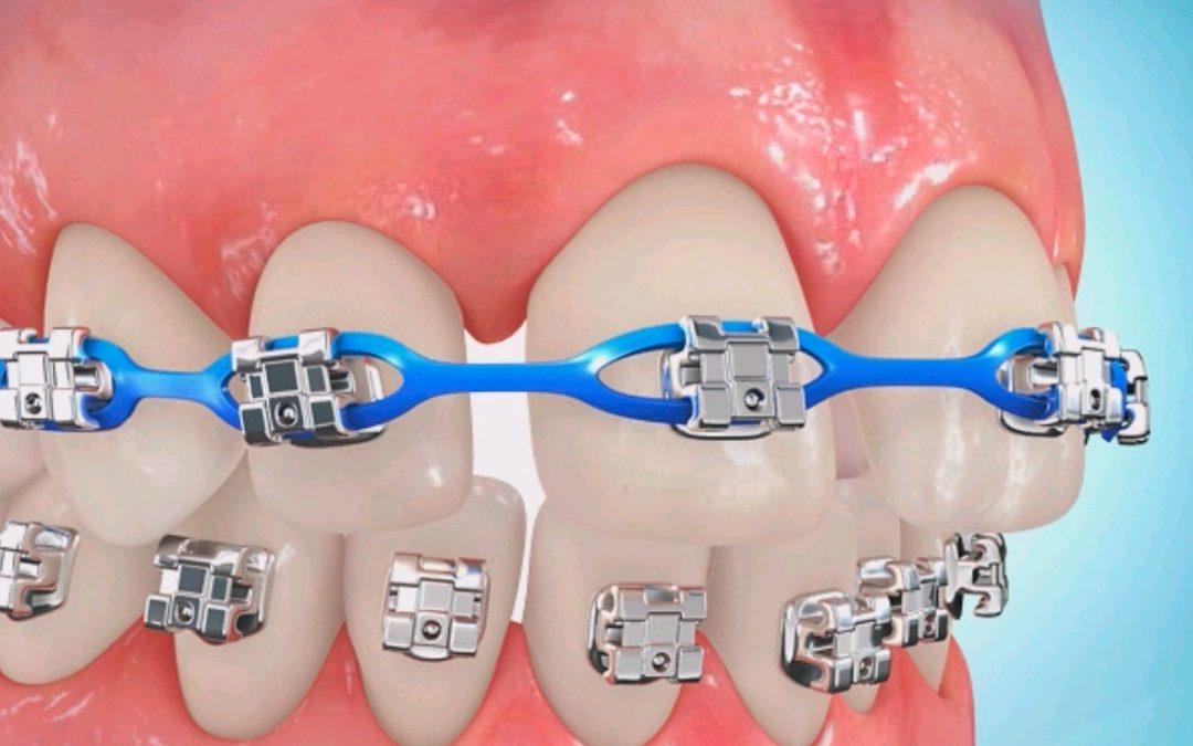 ارتودنسی برای بستن فاصله بین دندانها