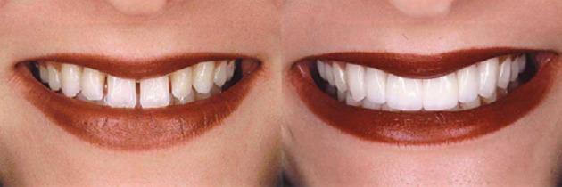 دیاستم یا فاصله بین دو دندان