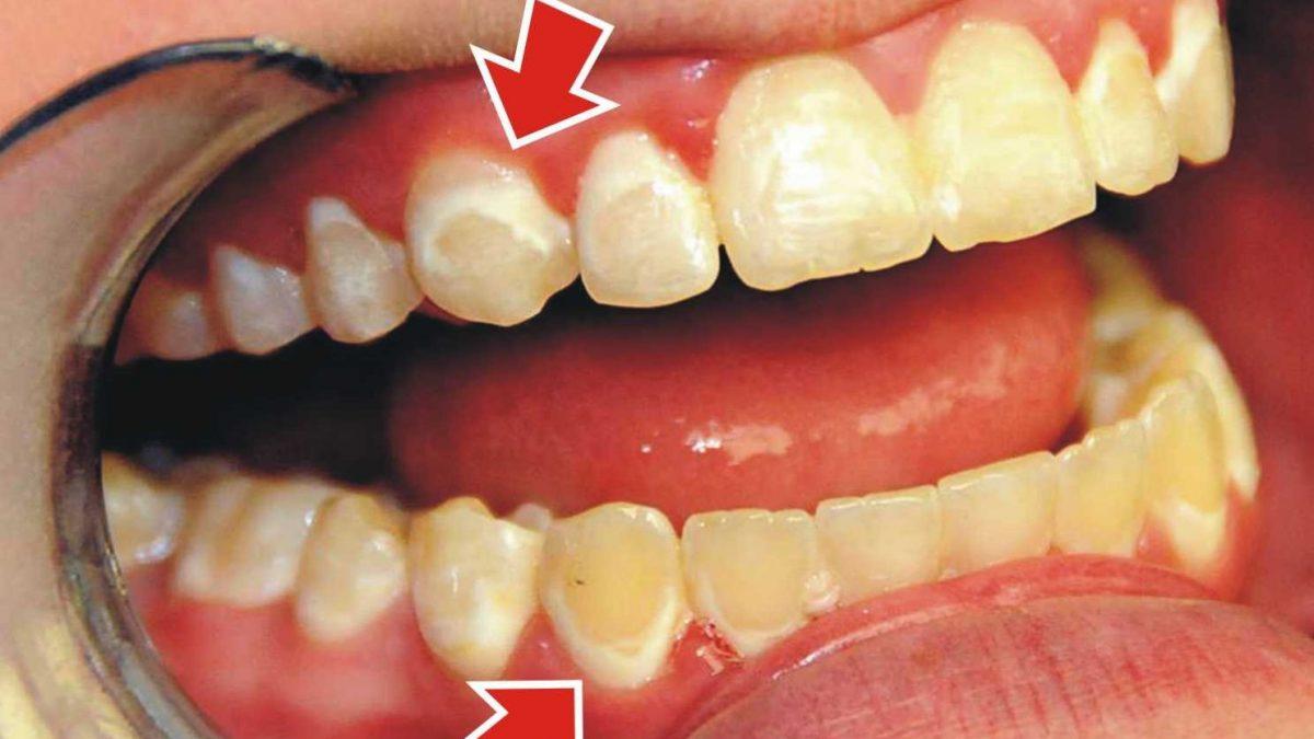 1 1 1 1200x675 - تغییر رنگ دندان در ارتودنسی