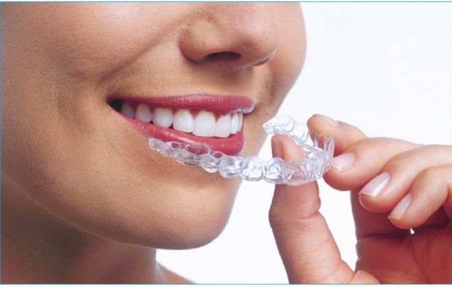 0 4 1 660x420 - معایب و مزایای ارتودنسی شفاف (اینویزالاین) برای درمان ارتودنسی