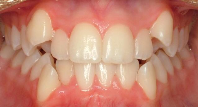 بی نظمی و به هم ریختگی دندانها