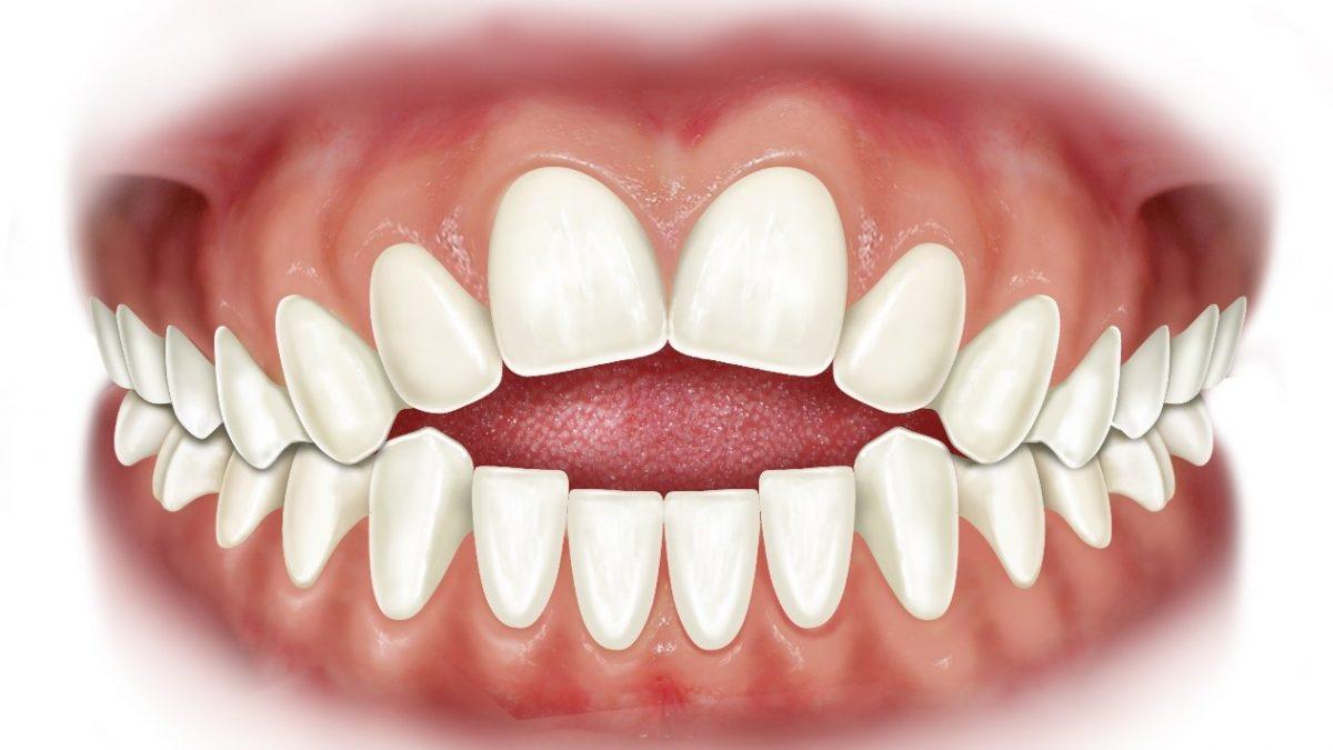 0 2 1200x675 - اپن بایت یا به هم نرسیدن دندانهای بالا و پایین