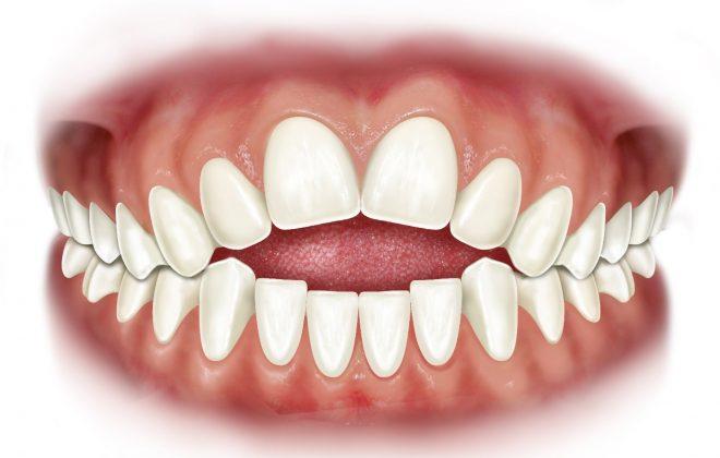 0 2 660x420 - اپن بایت یا به هم نرسیدن دندانهای بالا و پایین
