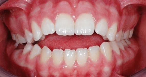 اپن بایت یا به هم نرسیدن دندانهای بالا و پایین
