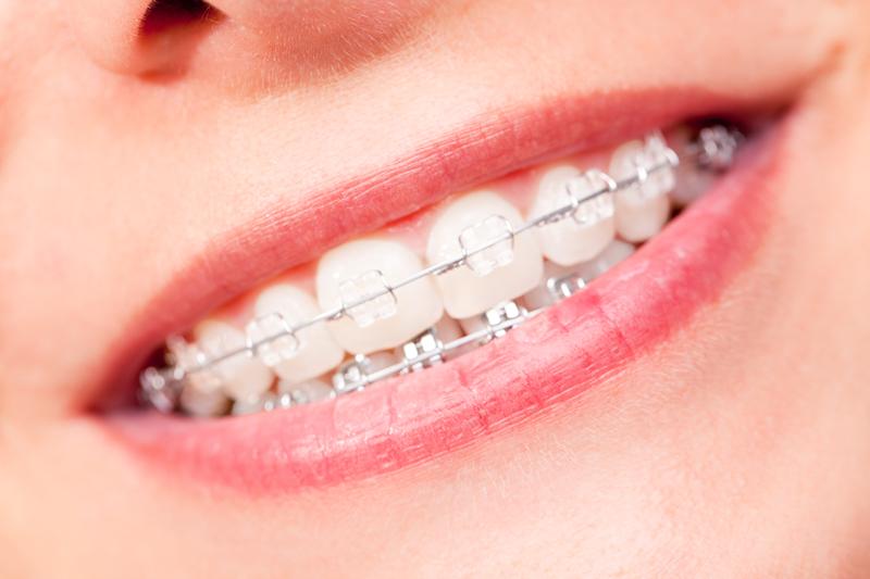 orthodontics - ارتودنسی در کرج