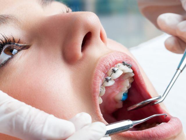 ortodontia - آيا فوق تخصص ارتودنسى وجود دارد؟