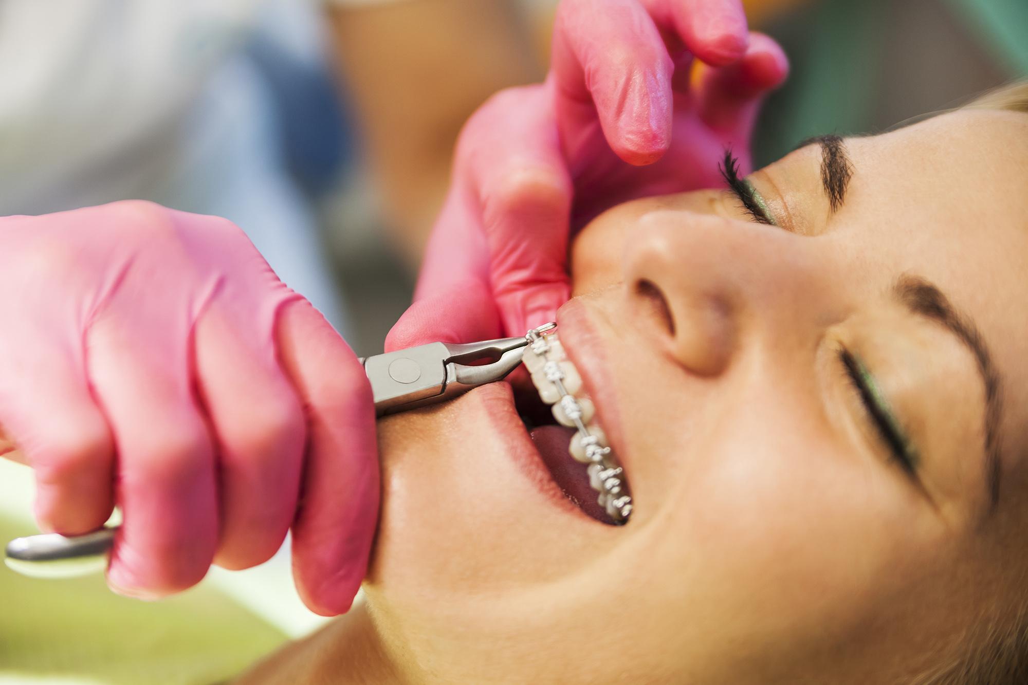 170725 orthodontist stock - بهترين متخصص ارتودنسى كرج