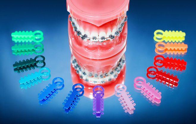 orthodontic faq 660x420 - بهترين متخصص ارتودنسى كرج