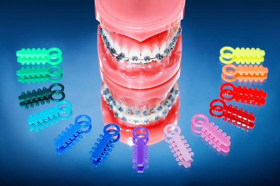 orthodontic faq - بهترين متخصص ارتودنسى كرج